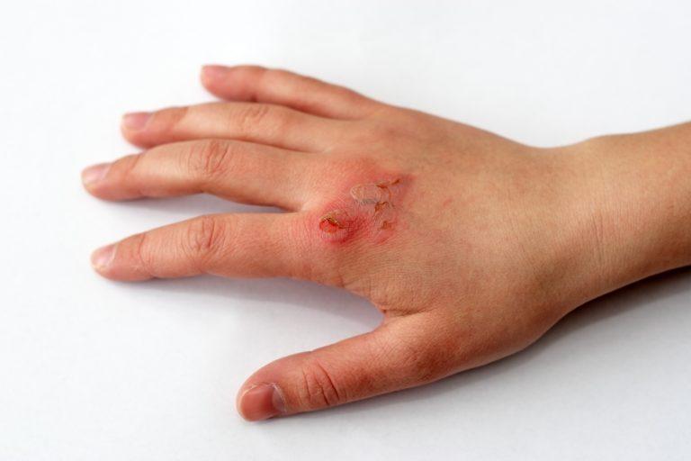 Le ulcere croniche o acute della pelle